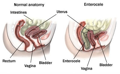 sex after vaginal prolapse surgery
