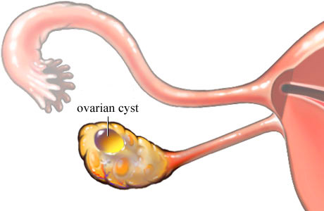 infected ovarian cyst